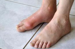 Боль в основании большого пальца ноги