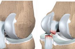 Разрыв крестообразной связки коленного сустава