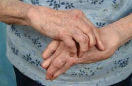 Пораженные артритом кисти рук