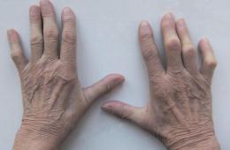 kak-opredelit-artrit-na-paltsah-ruk